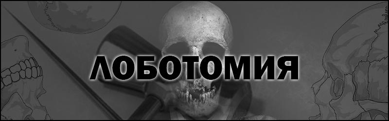 Что такое лоботомия